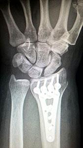 Bei Knochendichteminderung (Osteopenie, Osteoporose) können bei Stürzen schnell distale Radiusfrakturen resultieren.