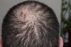Haartransplantationen können Haarausfall entgegenwirken.