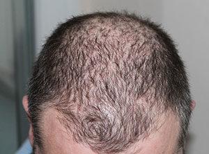 Haarausfall kann viele Ursachen haben.