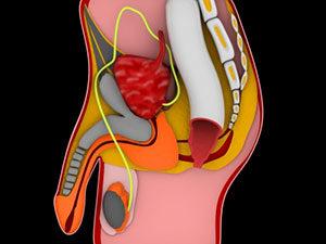Bei einer Entzündung der Prostata ist der PSA-Wert erhöht.