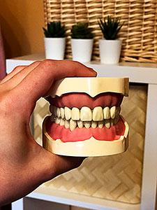 Artikulator, Bohreraufsätze und vor allem das Verbrauchsmaterial machen den größten Teil der Kosten für einen Zahni-Koffer aus.