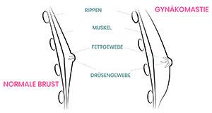 Exemplarischer Unterschied einer normalen Brust und einer Gynäkomastie.